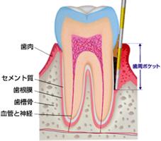 1.歯周病検査