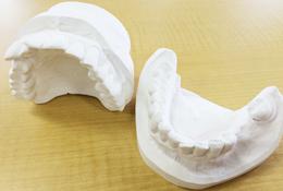 Step1 現在の口腔内の状態を模型で再現